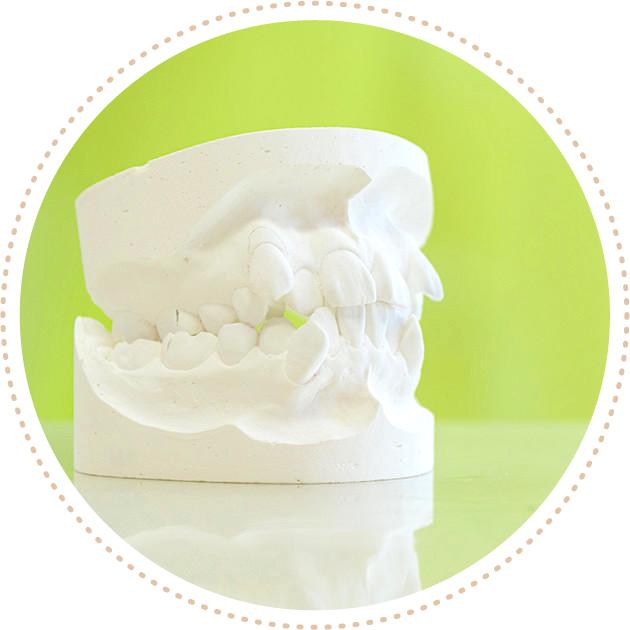 うえの矯正歯科の大人の矯正歯科